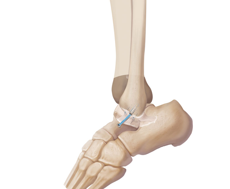 lateral-ligament-at-800