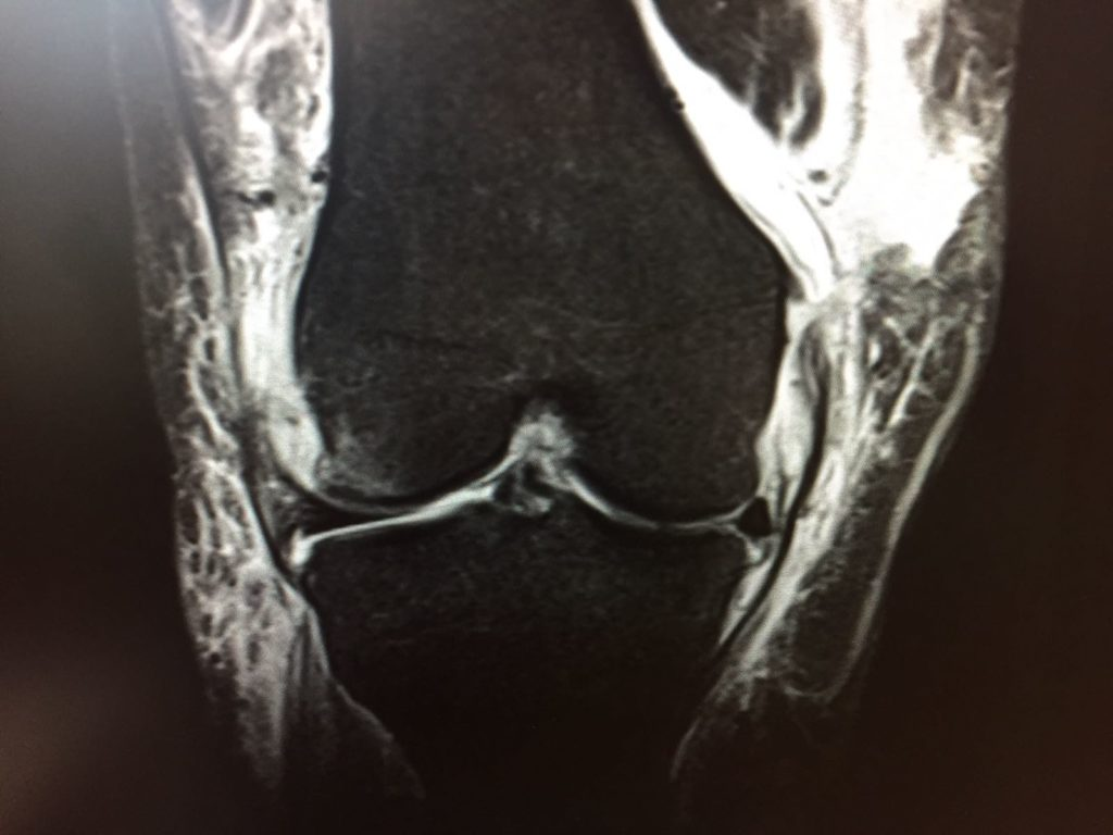 An initial MRI showed the severity of the damage